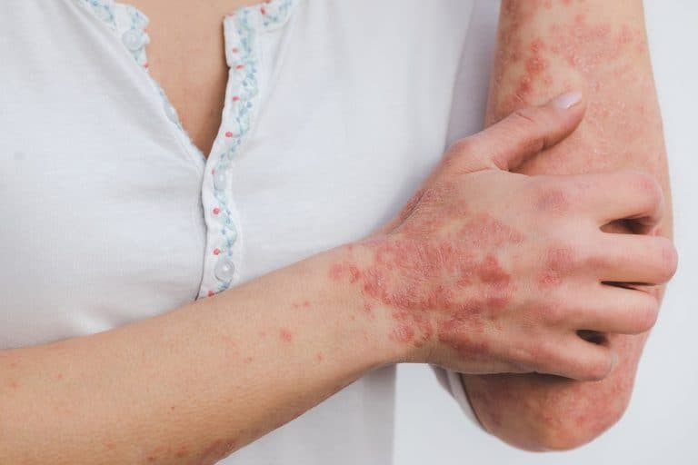 Probiotics for Psoriasis Treatment- Is There a Connection?
